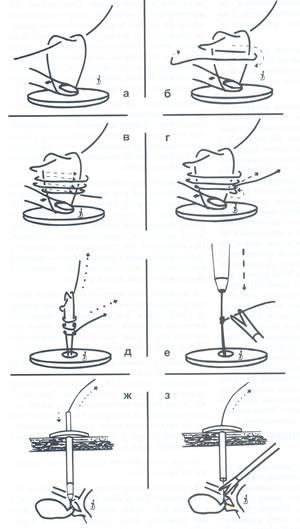 Петля редера как вязать